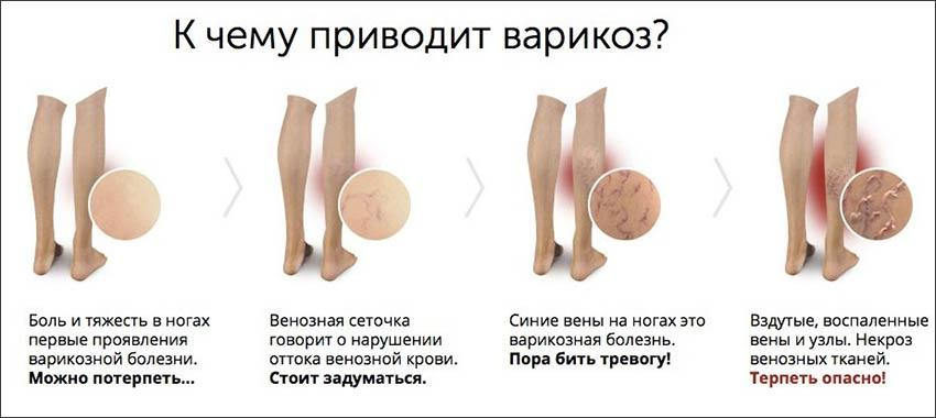Выступающие вены на мышцах ног