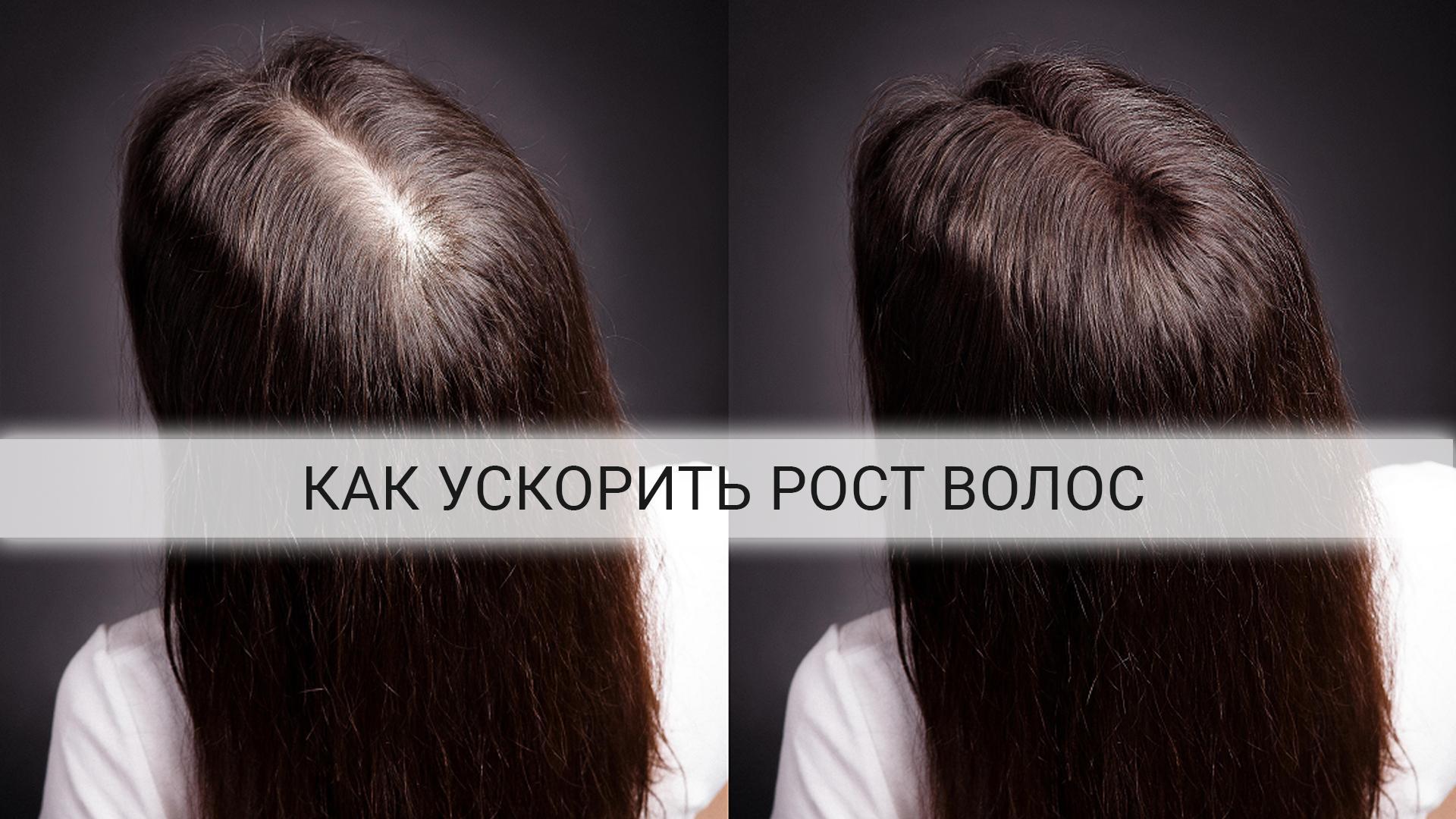 Как-ускорить-рост-волос