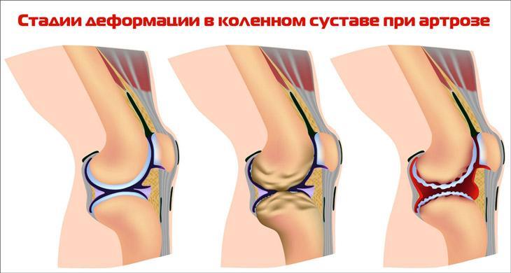 Изображение - Боль в коленном суставе при приседании причины stadii-degeneracii-hryashcha-kolennogo-sustava
